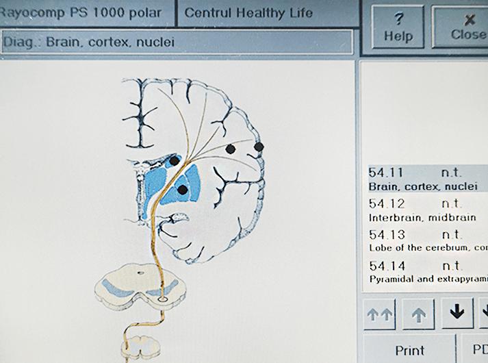 __Brain, cortex, nuclei__IMG_20200613_124629-min