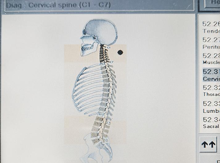 __Cervical spine__IMG_20200613_124228-min