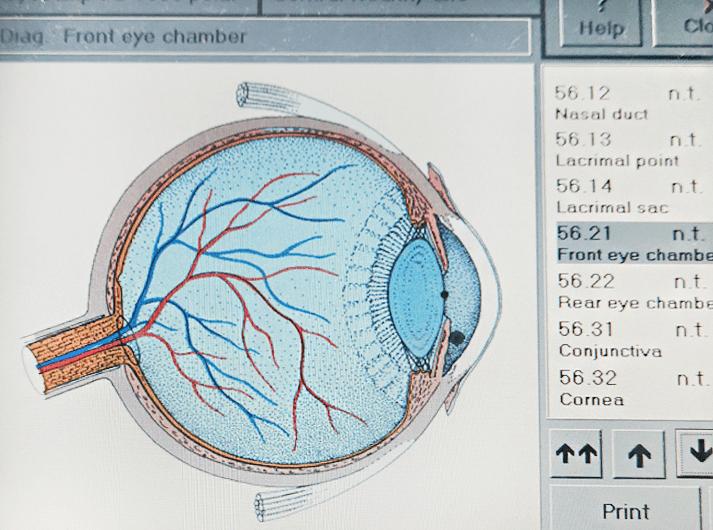 __Front eye chamber __IMG_20200613_125125-min