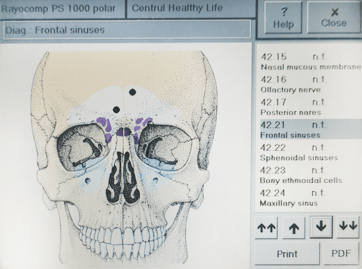 __Frontal sinuses __IMG_20200613_123752-min