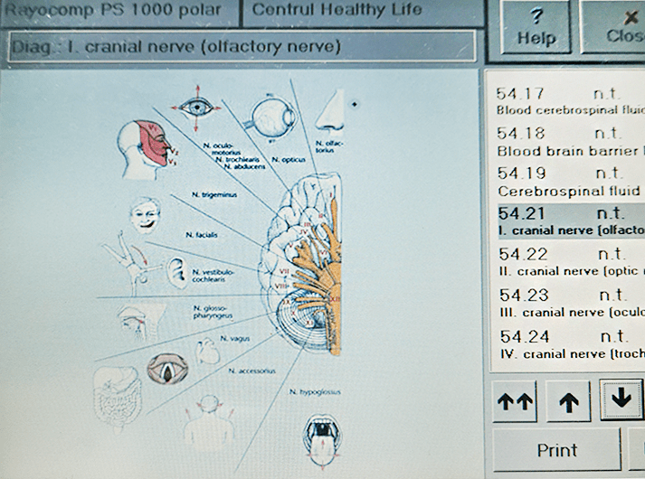 __I Cranial nerve (olfactory nerve) __IMG_20200613_124711-min
