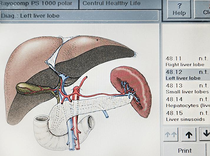 __Left liver lobe__IMG_20200613_124030-min