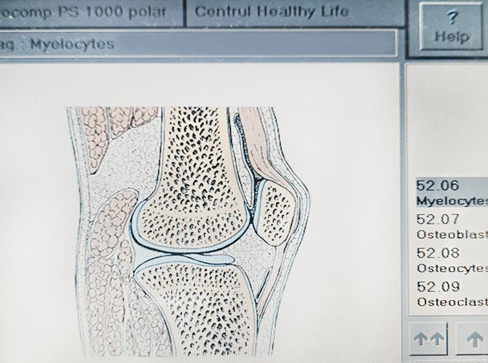 __Myelocytes__IMG_20200613_124135-min