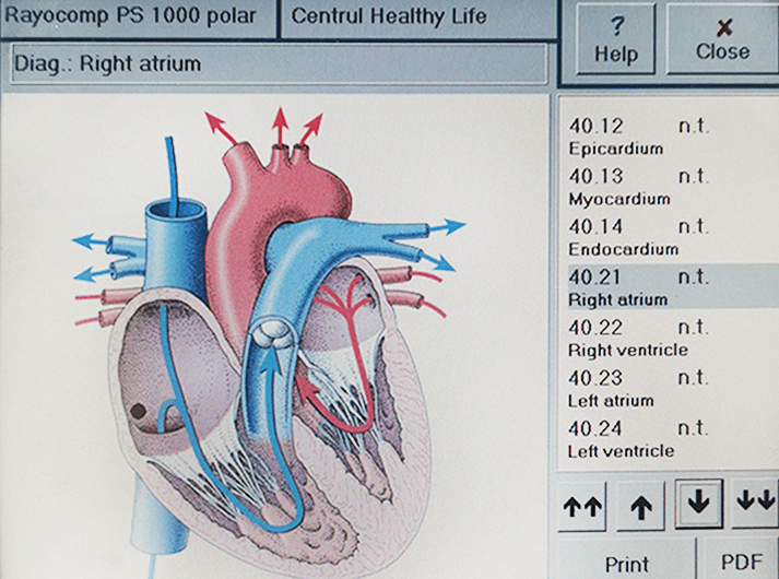 __Right Atrium __IMG_20200613_123541-min