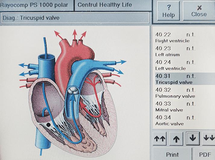 __Tricuspid valve - IMG_20200613_123610-min